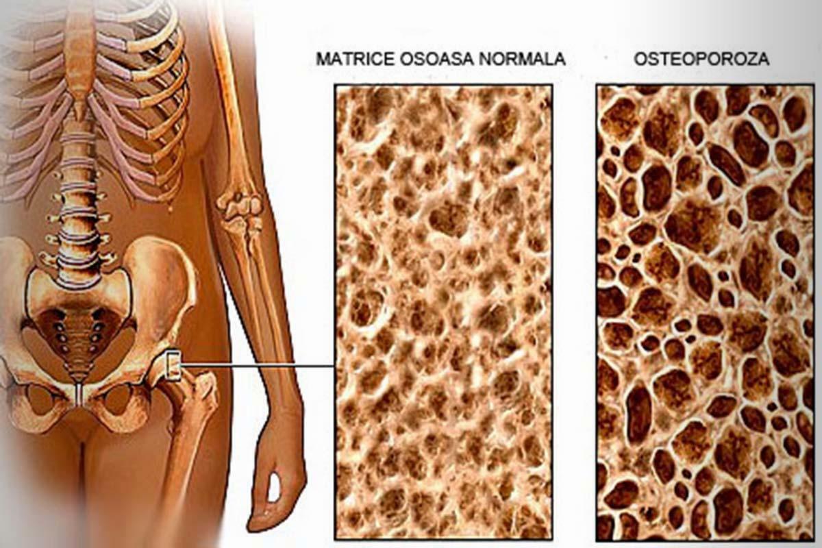 Osteoporoza - boala oaselor
